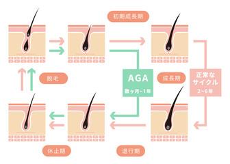 毛髪・ヘアサイクル/正常なサイクルとAGAの比較イラスト