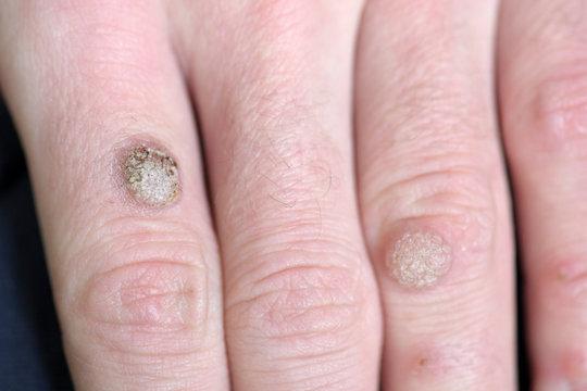 Wart on the hand finger.