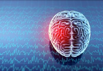Headache area on brain X-ray, 3D illustration.