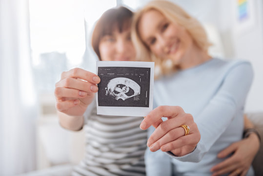 We are pregnant. Selective focus of an ultrasound photo being held by a joyful nice female couple