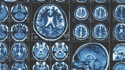 Mri brain scan background, magnetic resonance  tomography