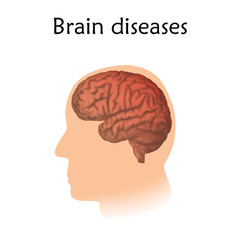 Brain diseases. Vector medical illustration. White background, silhouette of head, anatomy image of brain.