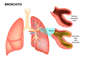 BRONCHITIS. Normal bronchial tube and