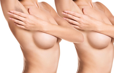 Woman showing her armpit before and after hair removal.