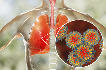 Measles viruses in human respiratory system