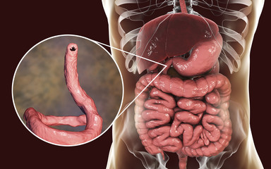 Parasitic hookworm Ancylosoma duodenale in human duodenum