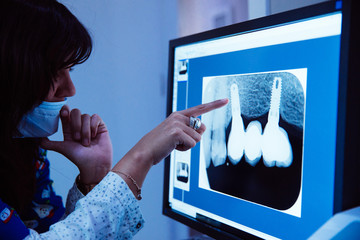 woman dentist observing and pointing an x-ray of mouth on the computer screen in her clinic