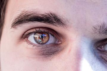 Augenpartie mit Augenringen, Mann
