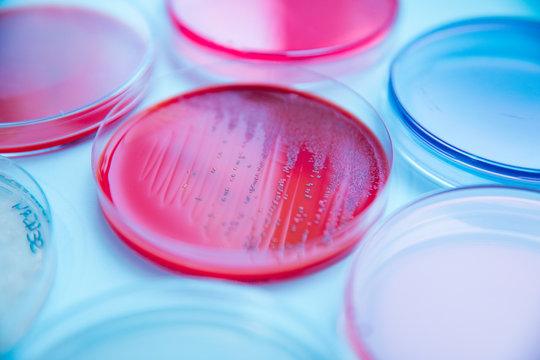 differents cultivation in petri dishes in laboratory