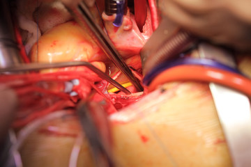 Open heart with drainage tubes and instruments inside close-up during surgery