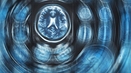 Mri brain scan background, magnetic resonance  tomography, with blur circle motion effect