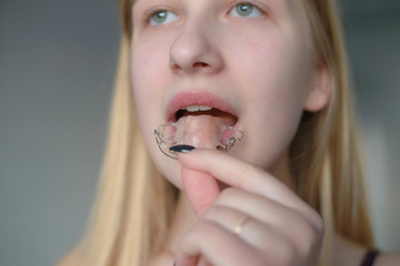 a young blonde girl inserts an orthodontic appliance into her mouth. dental care concept. Teeth with braces