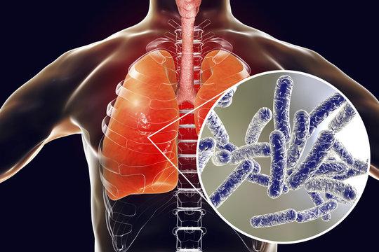 Legionella pneumophila bacteria in human lungs, 3D illustration, the causative agent of Legionnaire's disease