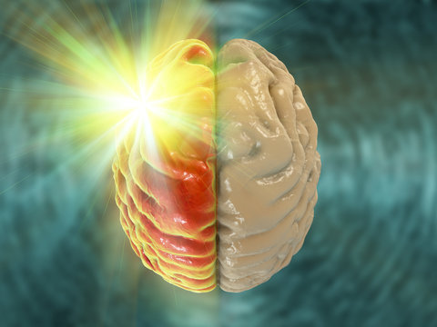 Migraine, hemicrania, medical concept showing pain in half of brain, 3D illustration