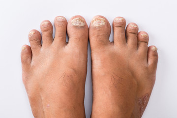 Psoriasis that Pedicure on white background