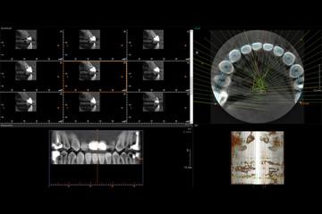 Dental 3D X-Ray of teeth