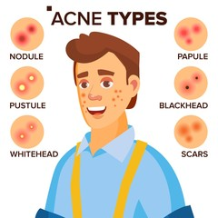 Acne Types Vector. Man With Acne. Facial Skin Problems. Papule, Pustulem Scards. Isolated Flat Cartoon Character Illustration