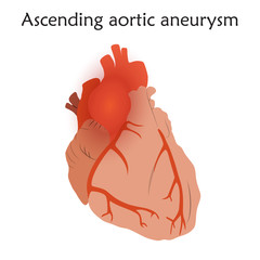 Ascending aortic aneurysm. Damaged heart muscle. Anatomy flat illustration. Colorful image, white background.