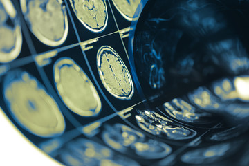 Human brain scan testing film folded in a roll, medical background with space for your design