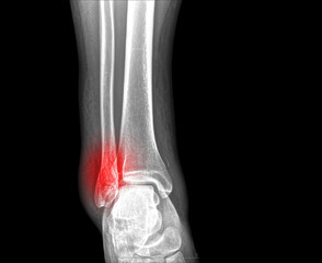 x-ray of ankle fracture
