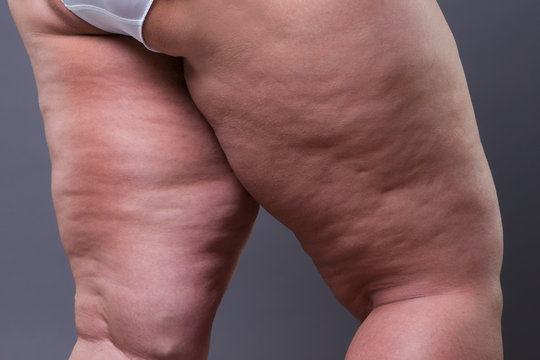 Fat female body with cellulite, overweight hips and legs