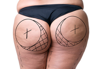 Liposuction, fat and cellulite removal concept, overweight female body with painted lines and arrows