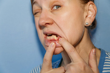 Women, showing mouth without tooth (broken) using fingers
