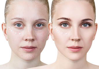 Portrait of young woman before and after make-up.