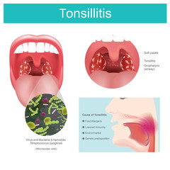 Tonsillitis.  Inflammation of the soft tissue in the mouth and pain in swallowing occurs. Illustration.