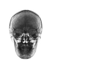 X-ray image of front view asian skull black and white