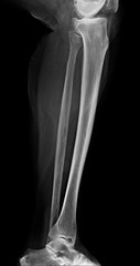 Lower leg xray , x-ray image of leg side / latteral view , xray of normal leg bone in adult