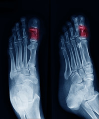 X-ray image of foot , can see fracture at Big toe at red area mark