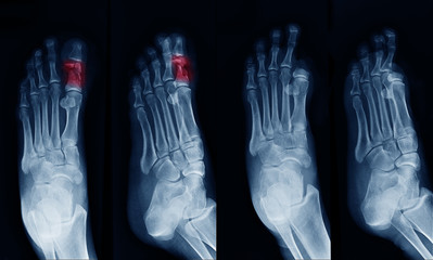 X-ray image of foot , can see fracture at Big toe at red area mark and show Big toe amputated