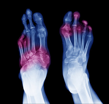 X-ray image of diabetic feet, posterior view show amputation toes and joint inflamed