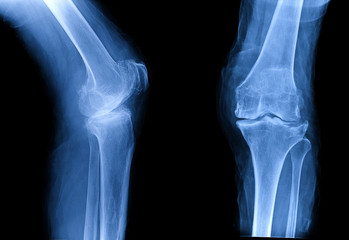 Osteoarthritis (OA) knee . film x-ray AP ( anterior - posterior ) and lateral view of knee show narrow joint space, osteophyte ( spur ), subchondral sclerosis, knee joint inflammation