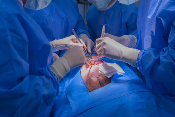 Doctors team wear blue coat perform heart surgery with cadaver at the operating room in the hospital.