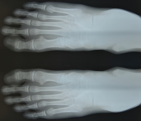 bone of foot x-ray film.