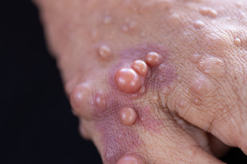 Neurofibromatosis (NF) is conditions in which tumors grow, symptoms include light brown spots on the skin.