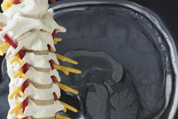 Human cervical spine model and brain MRI picture
