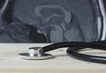 A black stethoscope and MRI brain picture