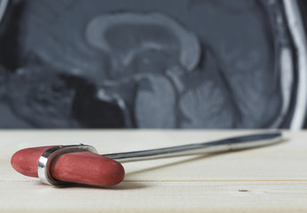A reflex hammer and picture of brain MRI