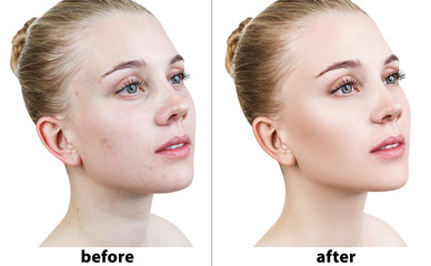 Portrait of woman before and after retouch. Wall mural