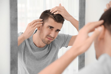 Young man with hair loss problem looking in mirror indoors