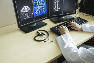 Doctor looking MRI brain in computer monitor