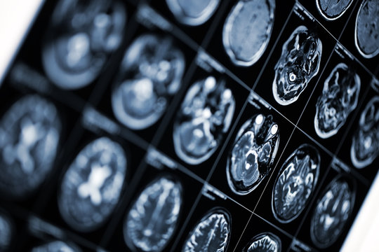 Medical background with MRI scan image of human head