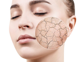 Zoom circle shows dry facial skin before moistening.