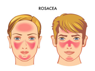 vector medical illustration of the symptoms of skin disease called rosacea
