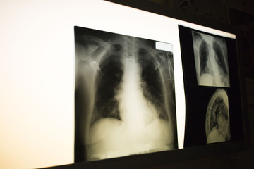 X-ray picture of lungs (chest)