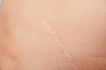 Scars removal concept. Young woman with large scar after surgery on abdomen, removal of appendicitis.