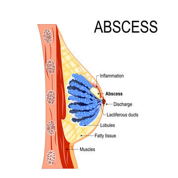 abscess. Cross-section of the mammary gland with inflammation of the breast